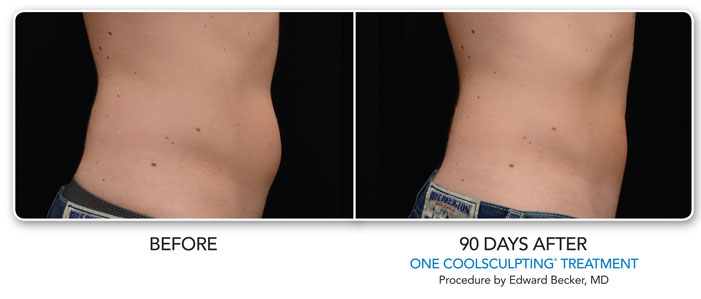 Coolsculpting ZELTIQ Gallery